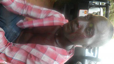 UW Photo:Semogerere Marvin bleeding after he was hit in the recent KCCA riots